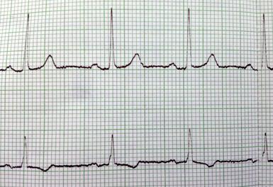 leistungen09_EKG c